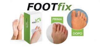 Recensione footfix rimedio alluce valgo