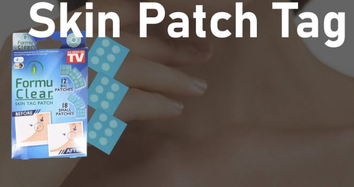 skin tag patch recensione