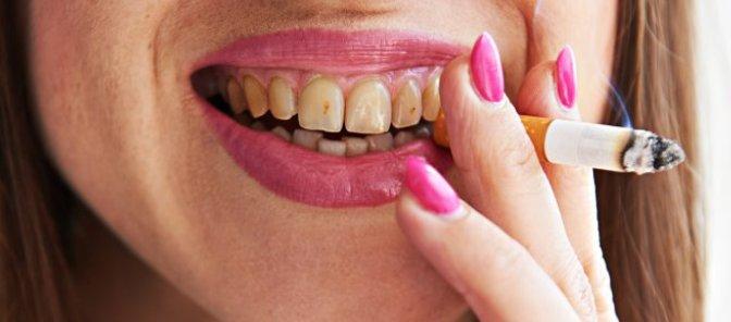 denti macchiati dalla sigaretta